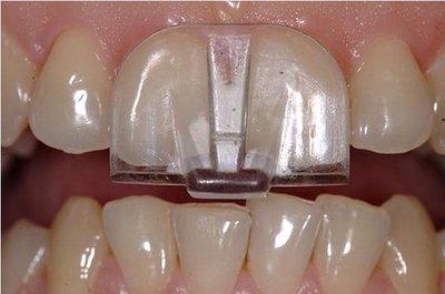 NTI-TSS knarsbitje tegen tandenknarsen